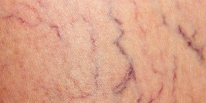 spiderveins400x200