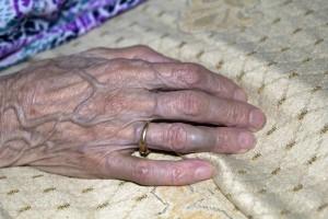 hand veins
