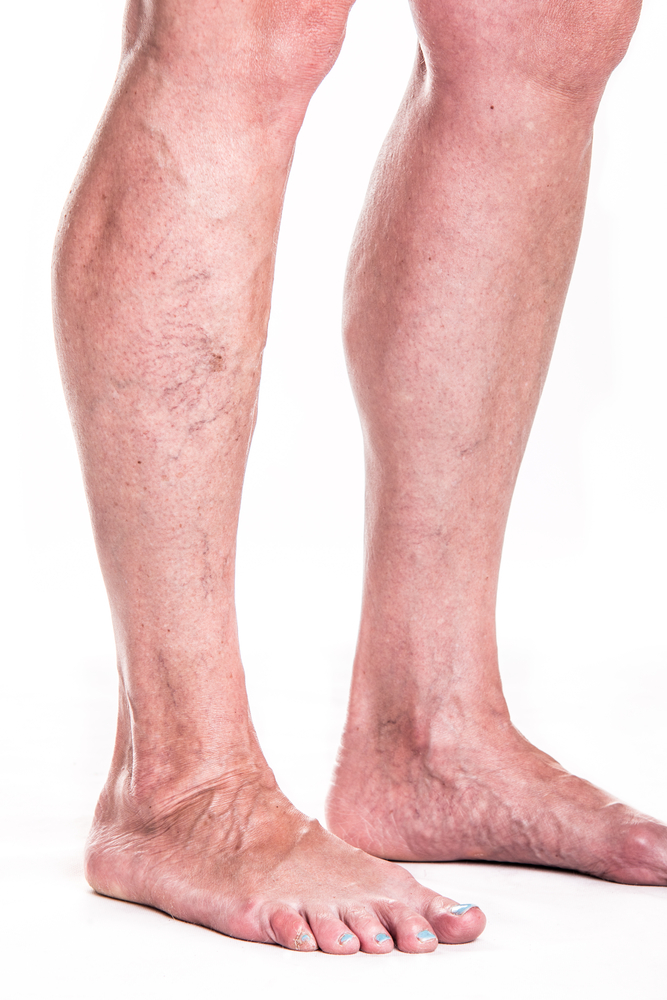 how to get rid of little veins on legs