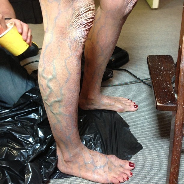 Halloween 2014: Leg Veins Not Part of Your Costume! - VaricoseVeins.org
