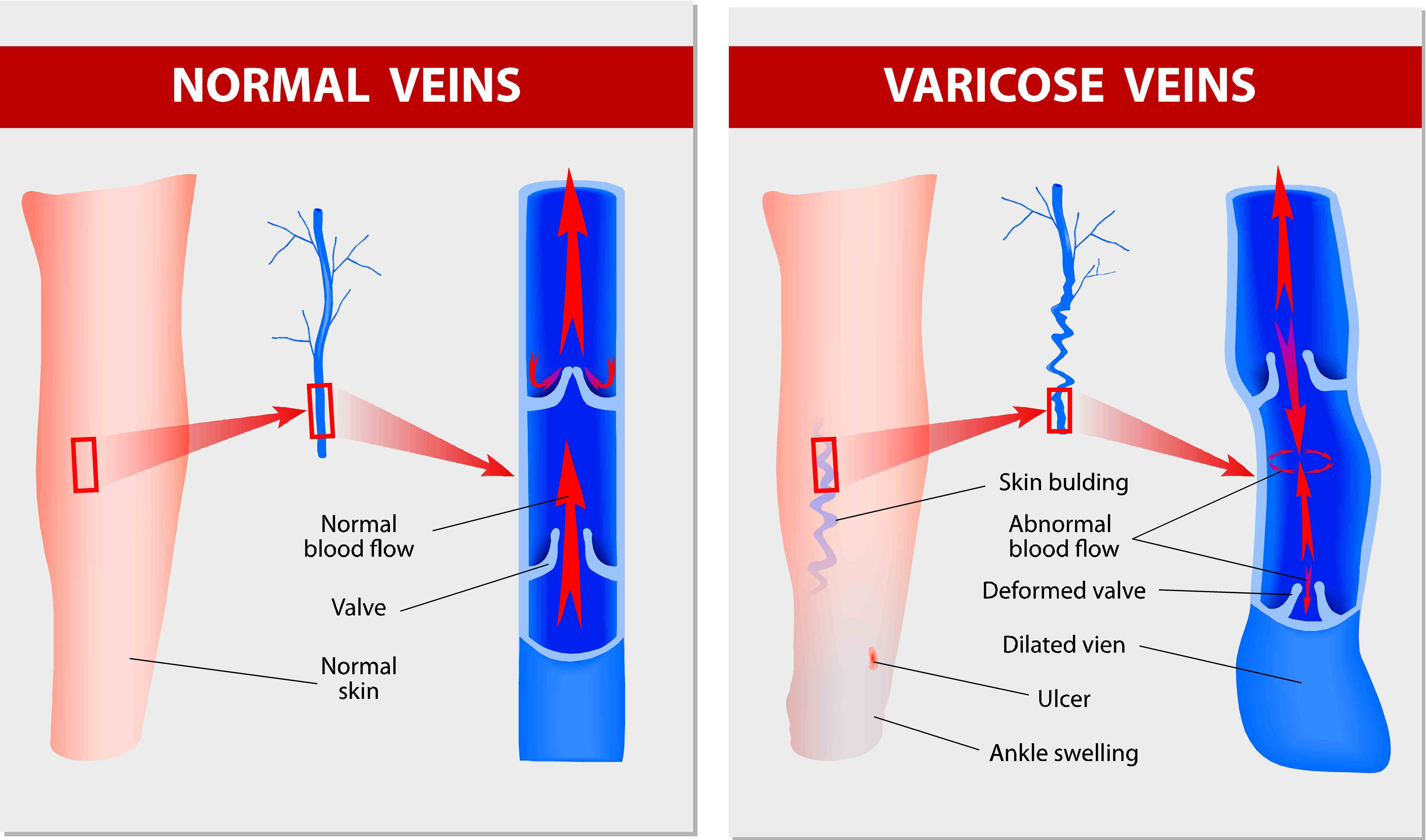 suitable workouts for varicose veinsVaricose Ulcer Diagram #8