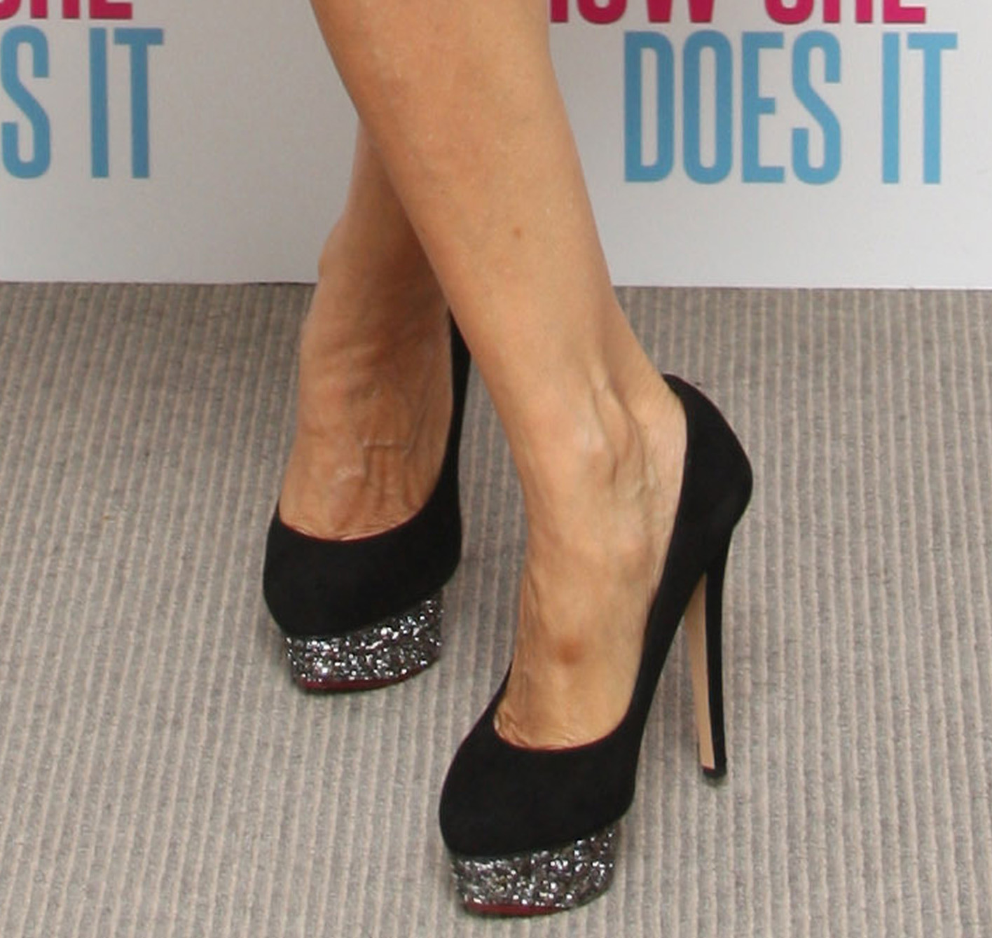 Celebrities With Spider Veins and Varicose Veins - Vein ...