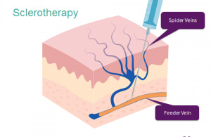 Unguento di geparinovy di posizione di asterischi vascolare
