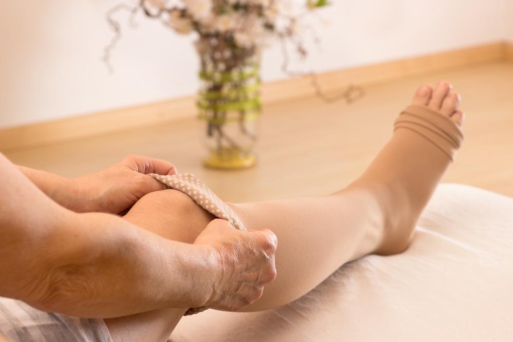 femeie varicose foot)