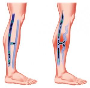 Leg ulcer1