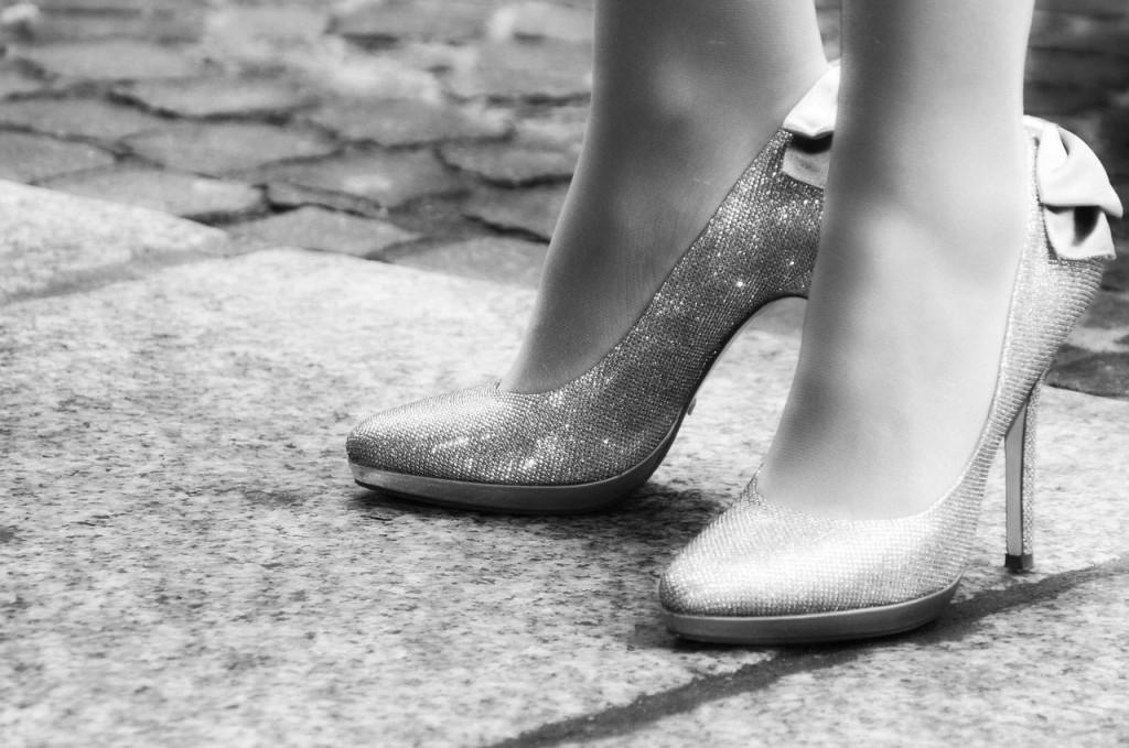 High Heels and Spider Veins